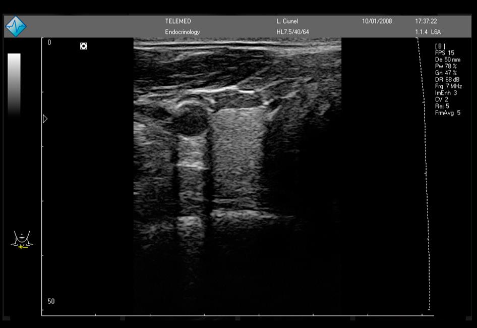 LS64-ecografia-07